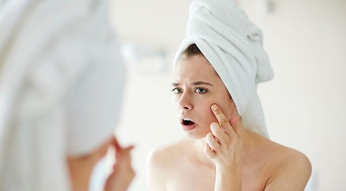 Jak pielęgnować skórę trądzikową