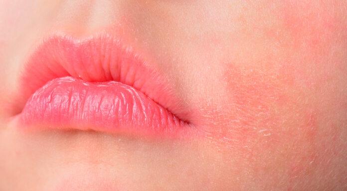 Cera atopowa - kobieta z zaczerwienioną, wysuszoną skórą wokół ust